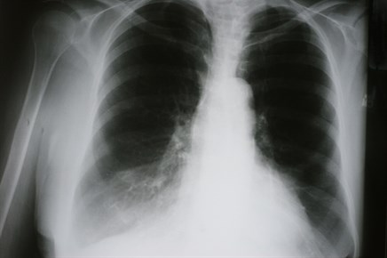 Collagen Degradation, Formation Elevated in Patients With Exacerbated COPD
