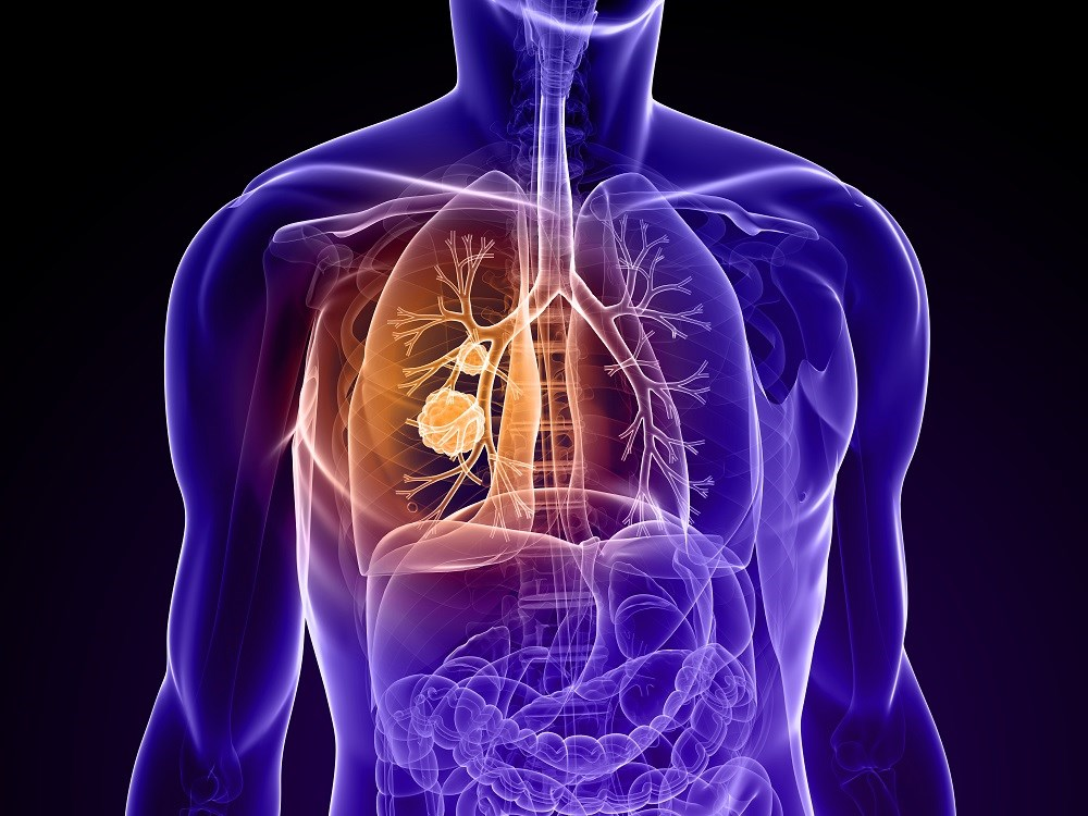 Non-Small Cell Lung Cancer Risk Increases With Chronic Inflammatory Lung Disease