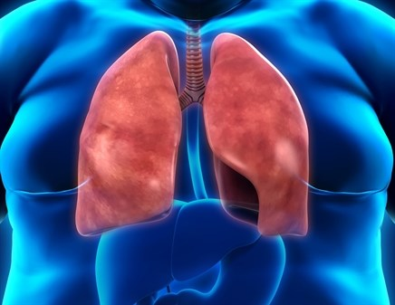 Age-Obesity Interaction in Pulmonary Arterial Hypertension