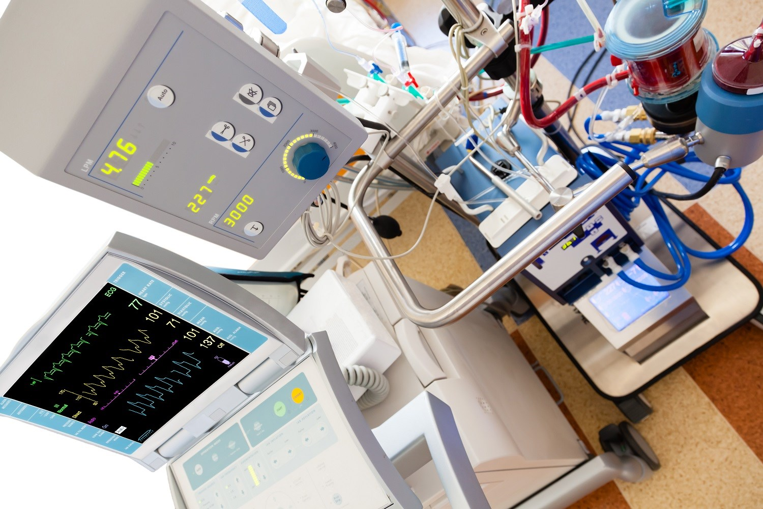 Venoarterial ECMO Improves Survival to Transplant in Interstitial Lung Disease