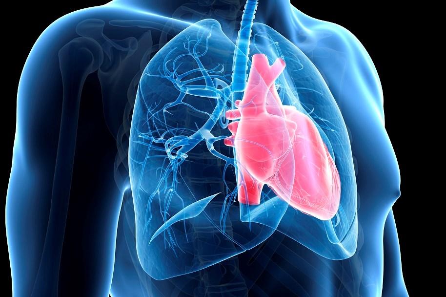 Stroke, MI Risk Increased After Severe COPD Exacerbations