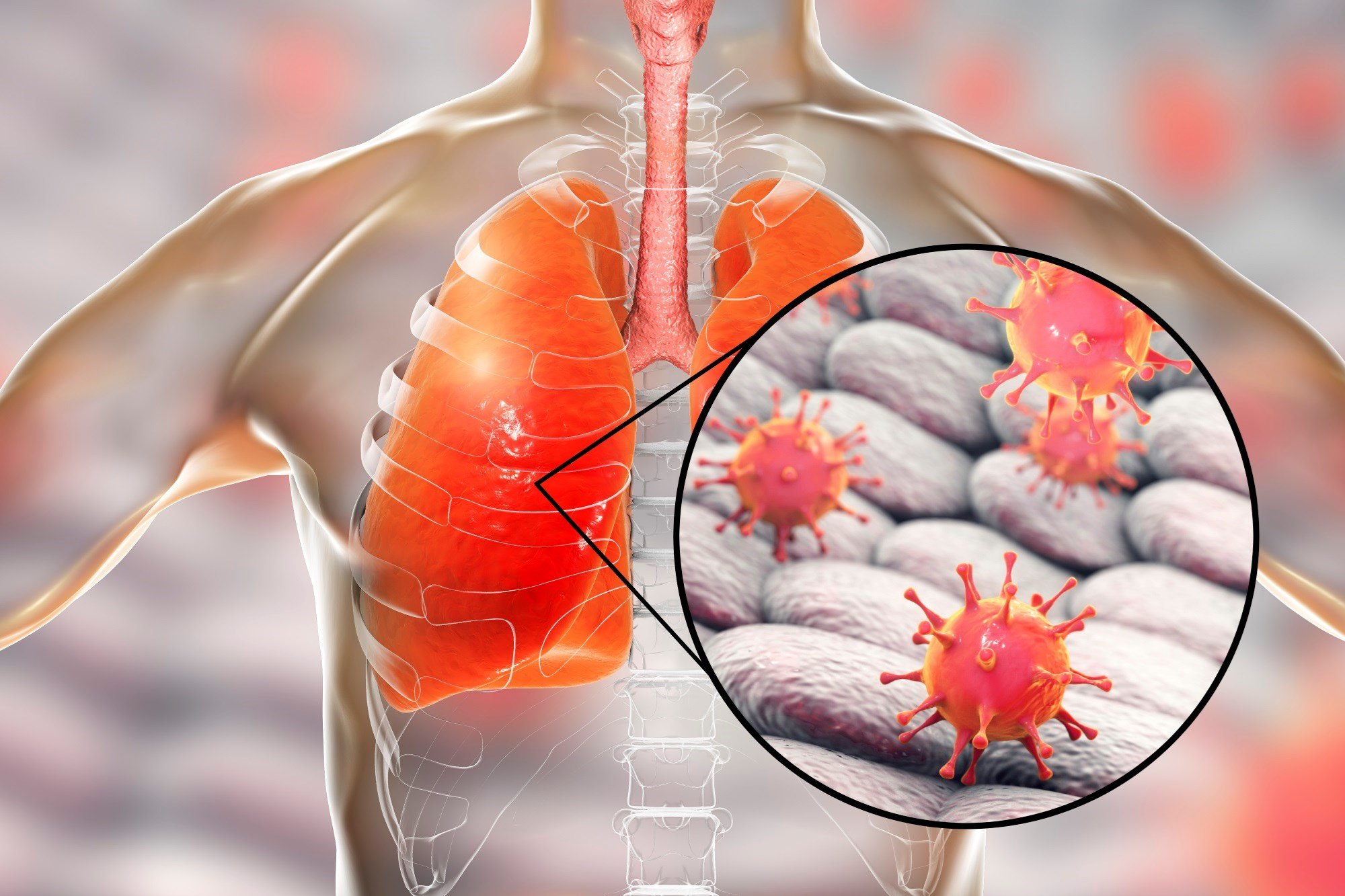 Respiratory viral testing is important to improve patient outcomes in adults who have severe lower respiratory tract infections as a result of viral pathogens.