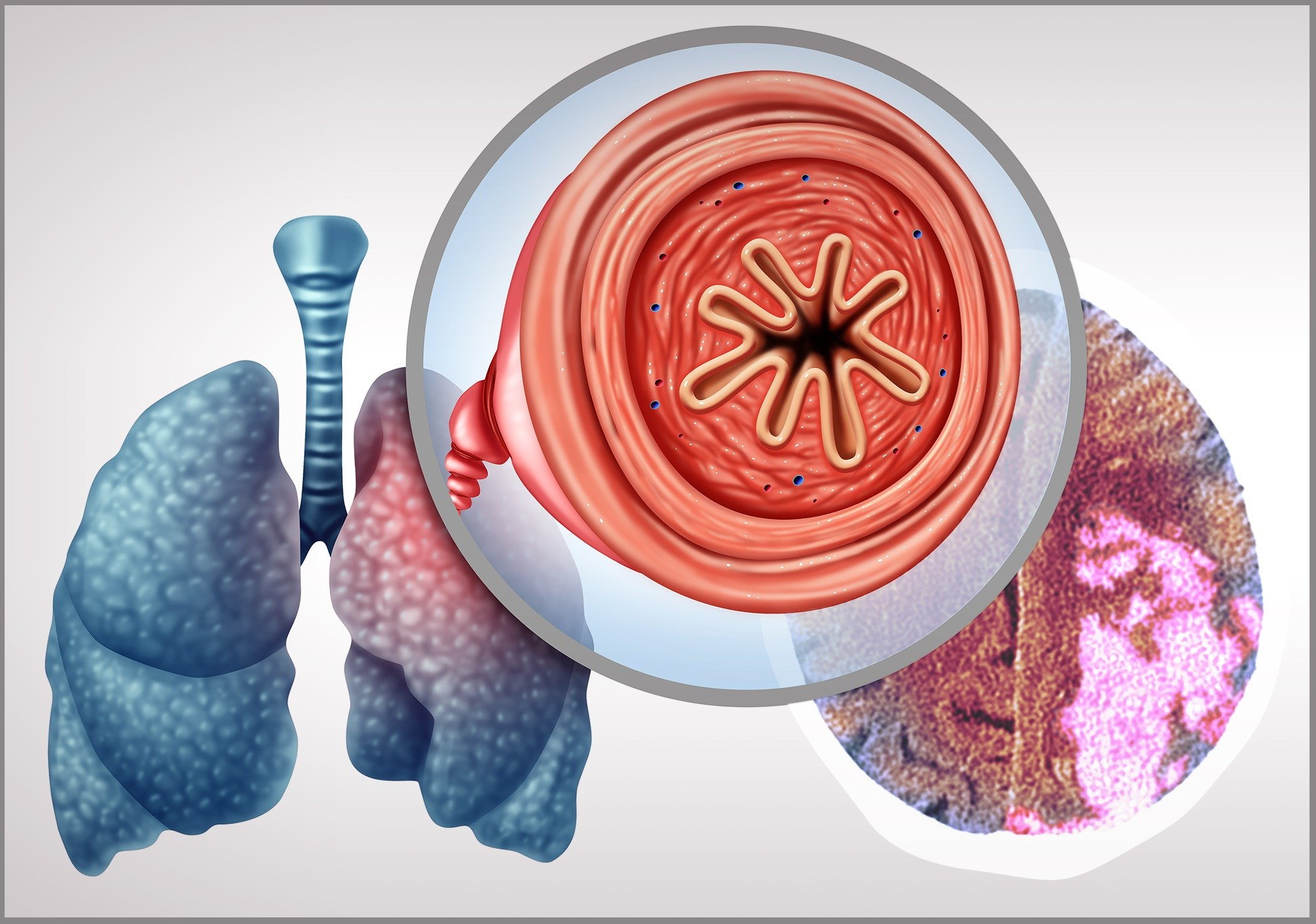Unraveling the Relationship Between COPD and Stroke