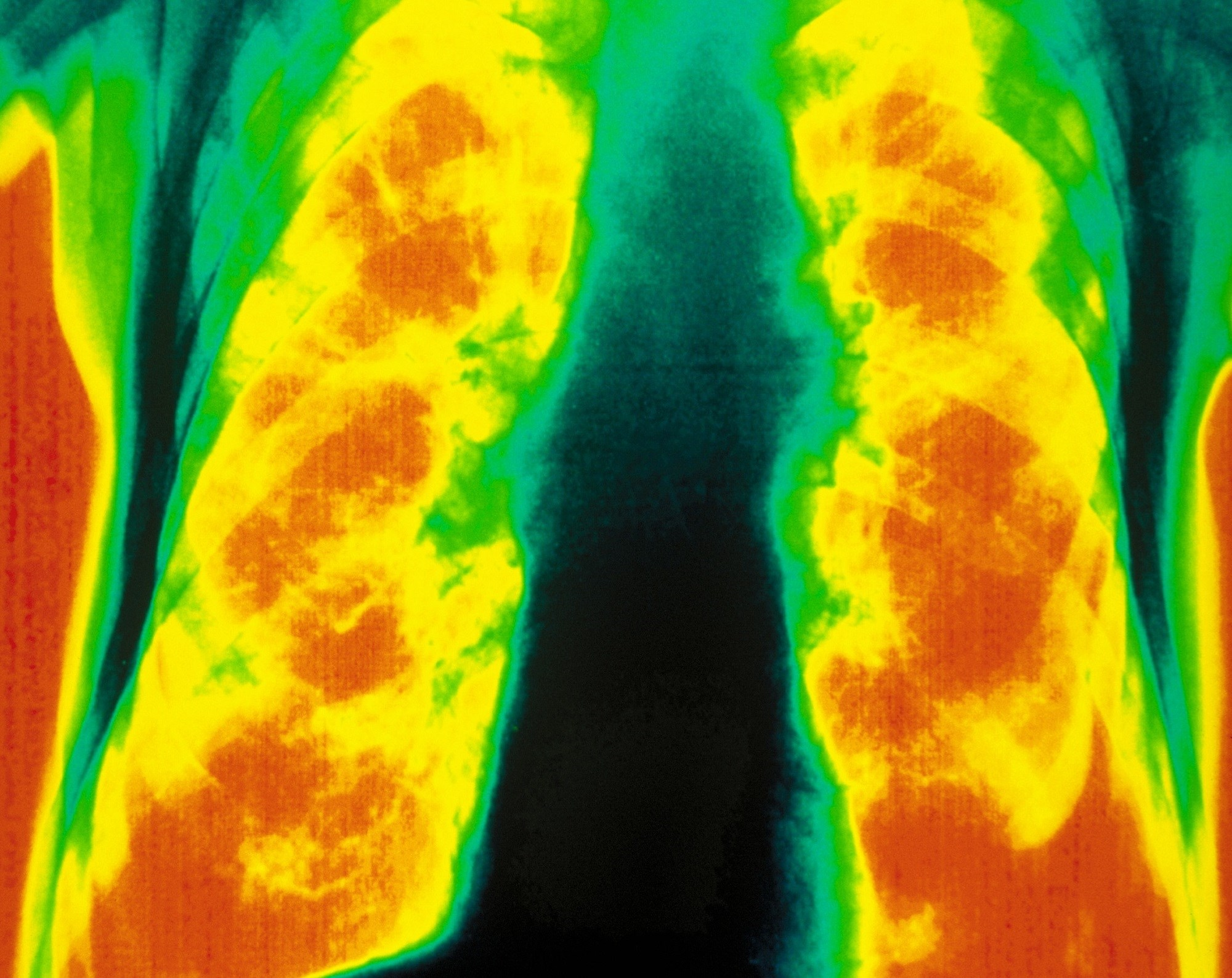 A better understanding of the different COPD phenotypes could lead to a more precision medicine approach to treatment. <i>Photo Credit: Scott Camazine/Science Source</i>