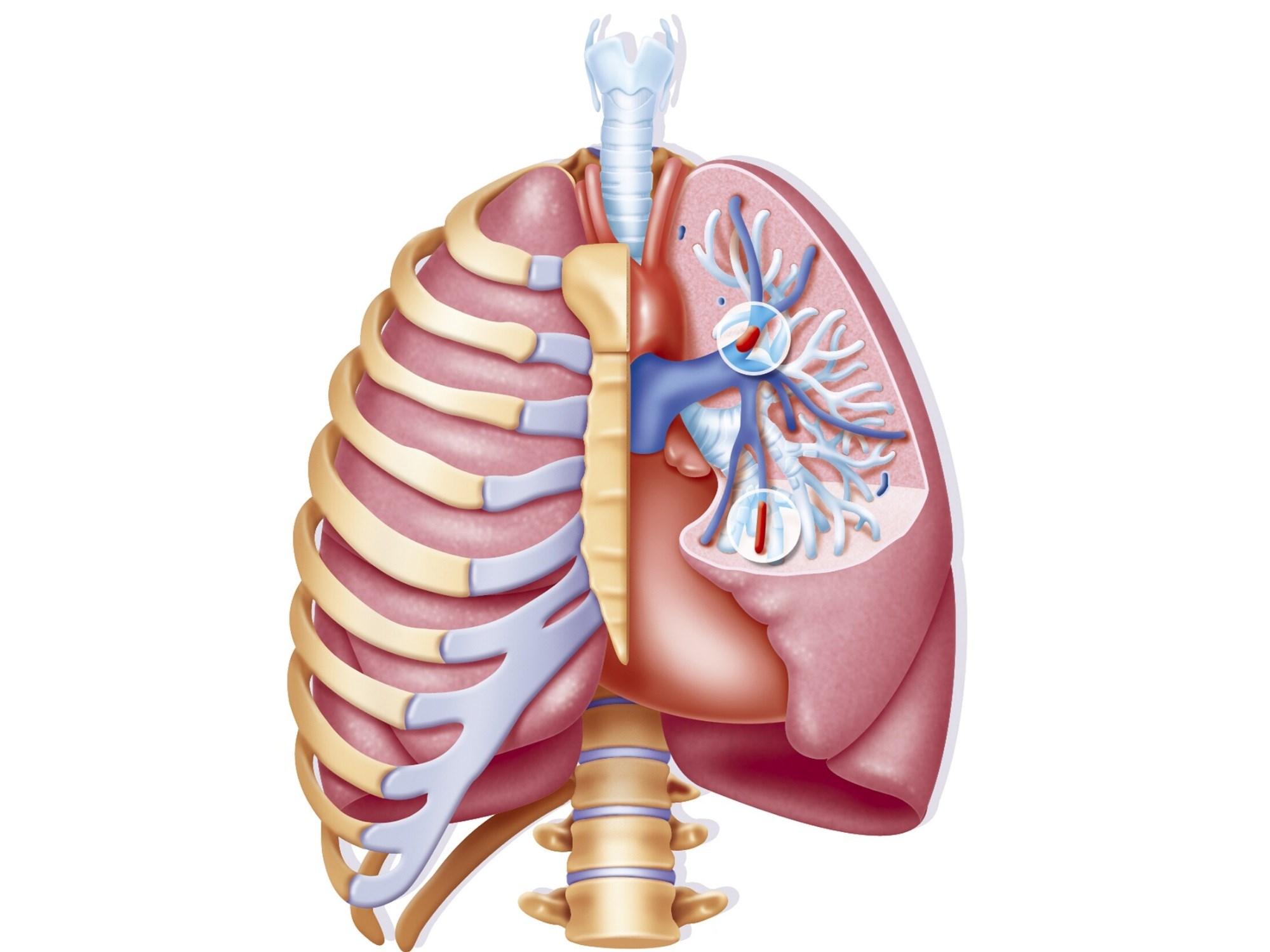 Trauma-Induced Pulmonary Embolism: A Clinical Case