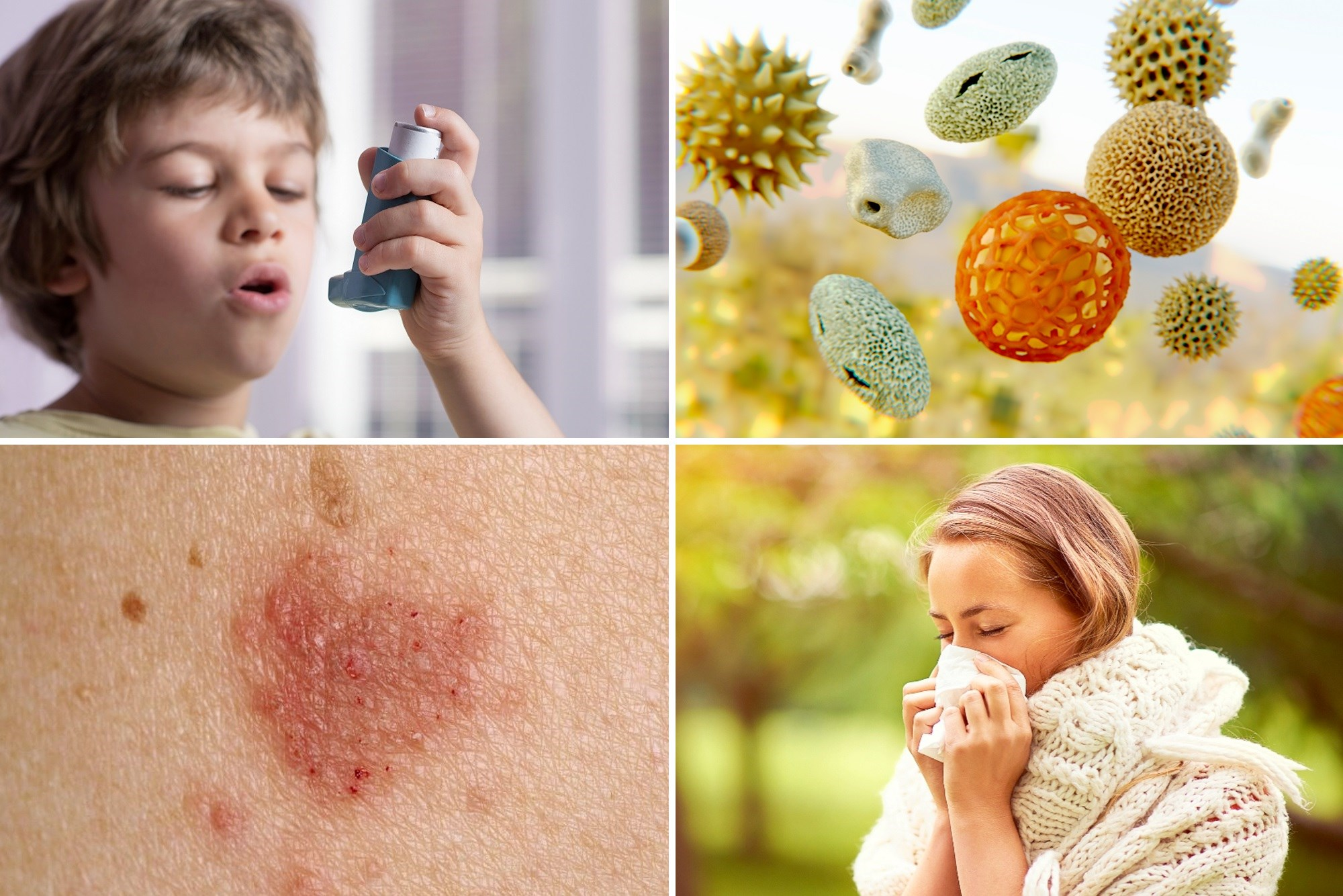 The relationship between eczema and asthma demonstrated significance only up to age 11 years, but the relationship between hay fever and asthma grew stronger in adolescence and early adulthood.