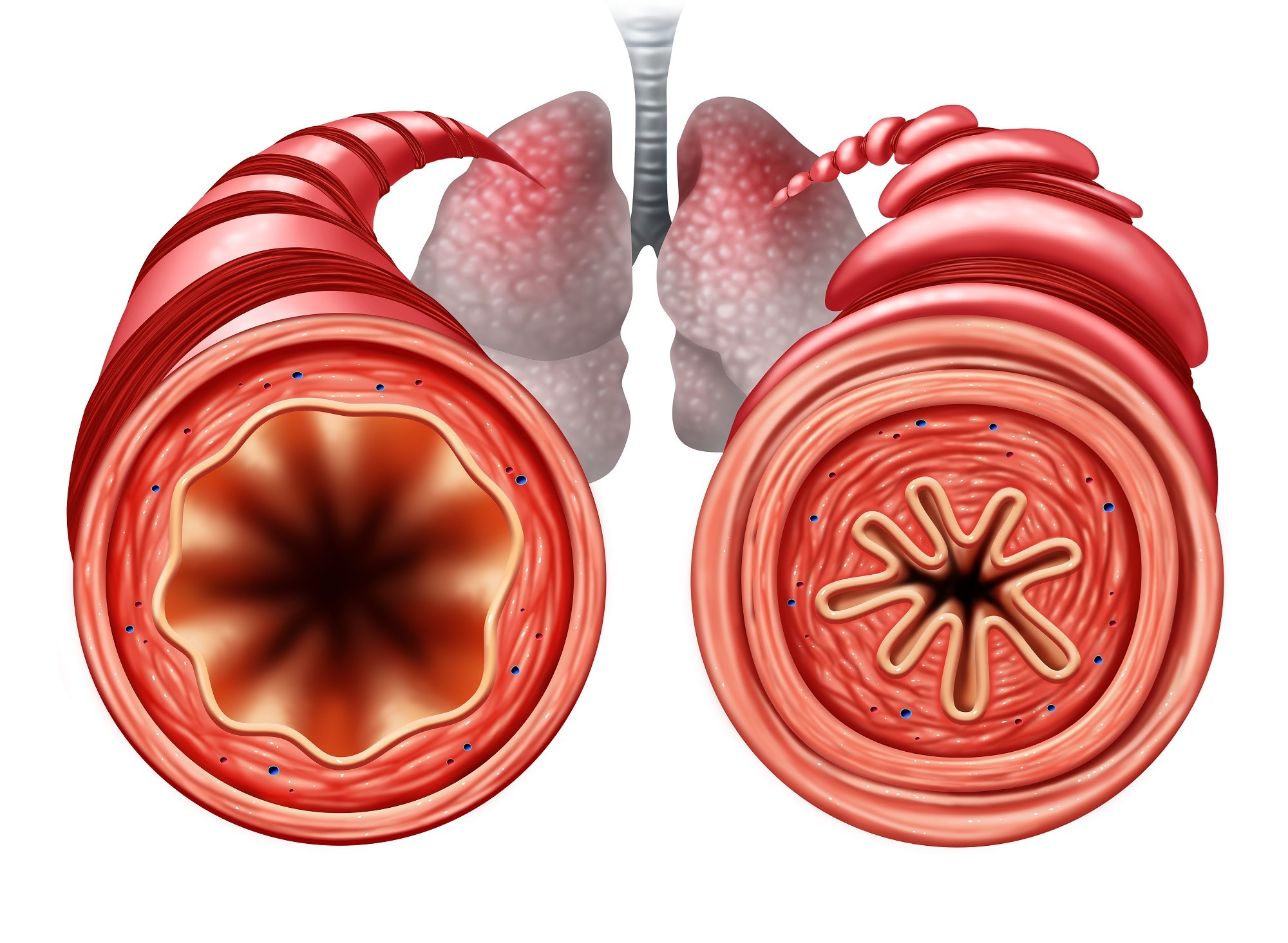 Gas Trapping Improved With Bronchial Thermoplasty in Severe Asthma