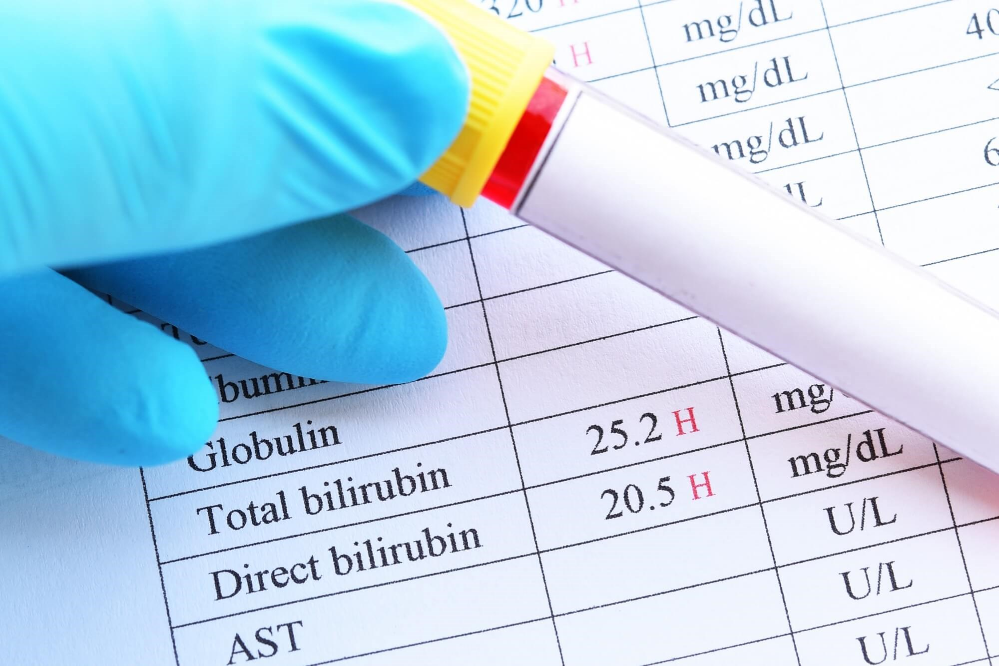 Asthma Risk in Infants Predicted by Total Serum Bilirubin