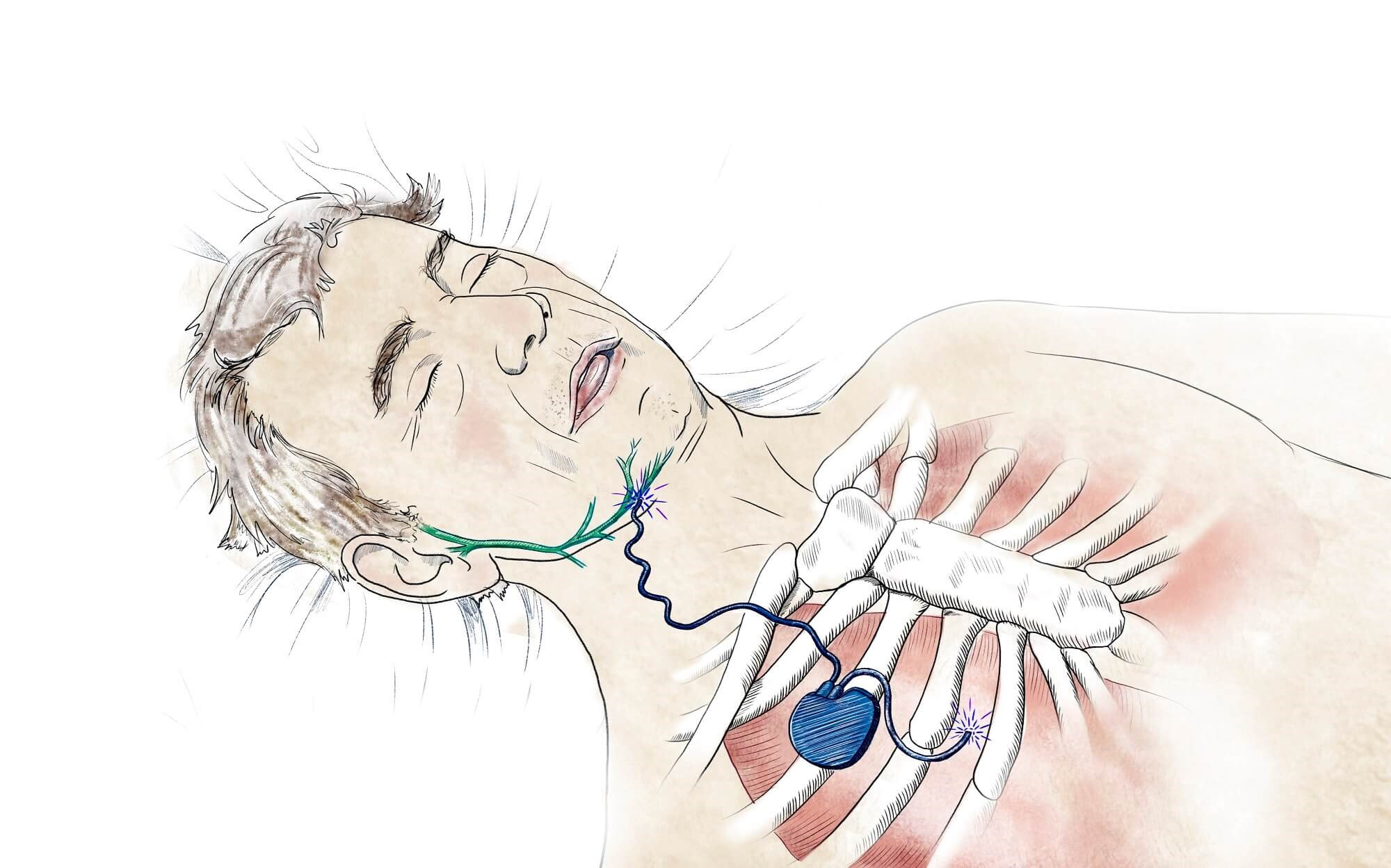 Hypoglossal Nerve Stimulation in OSA: A Viable Alternative to CPAP