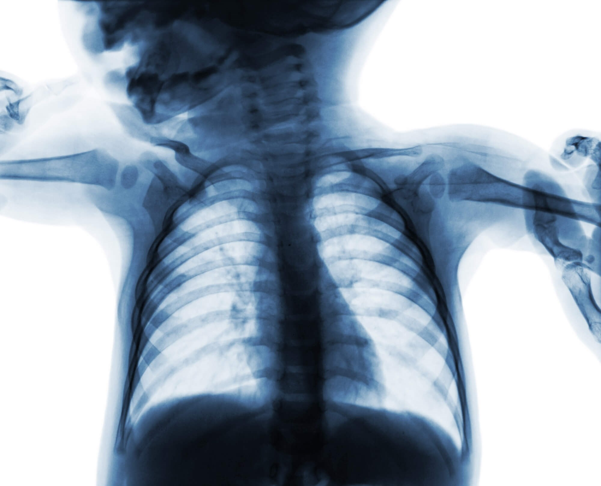 Radiography Still Common in Pediatric Bronchiolitis Despite AAP Guidelines