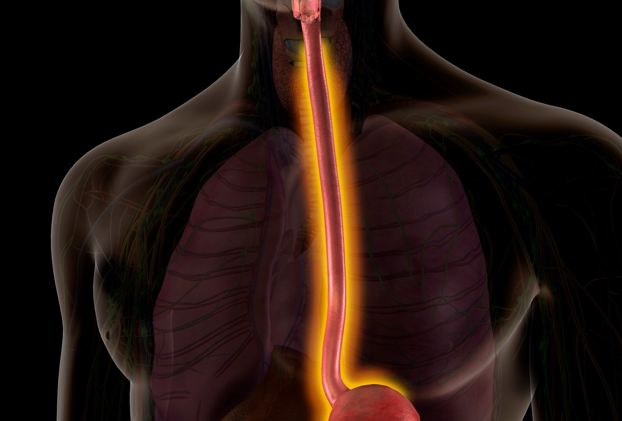 Incidence of intraoperative, postoperative complications lower in resectable esophageal cancer.