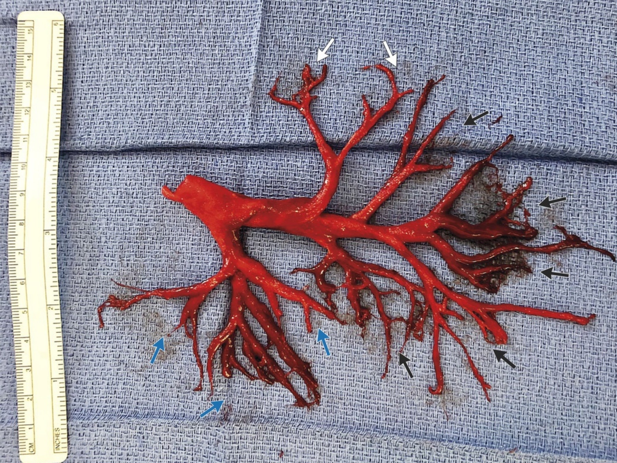 The patient experienced an extreme bout of coughing, which led to the expectoration of an intact cast of the right bronchial tree. Image credit: The New England Journal of Medicine ©2018.
