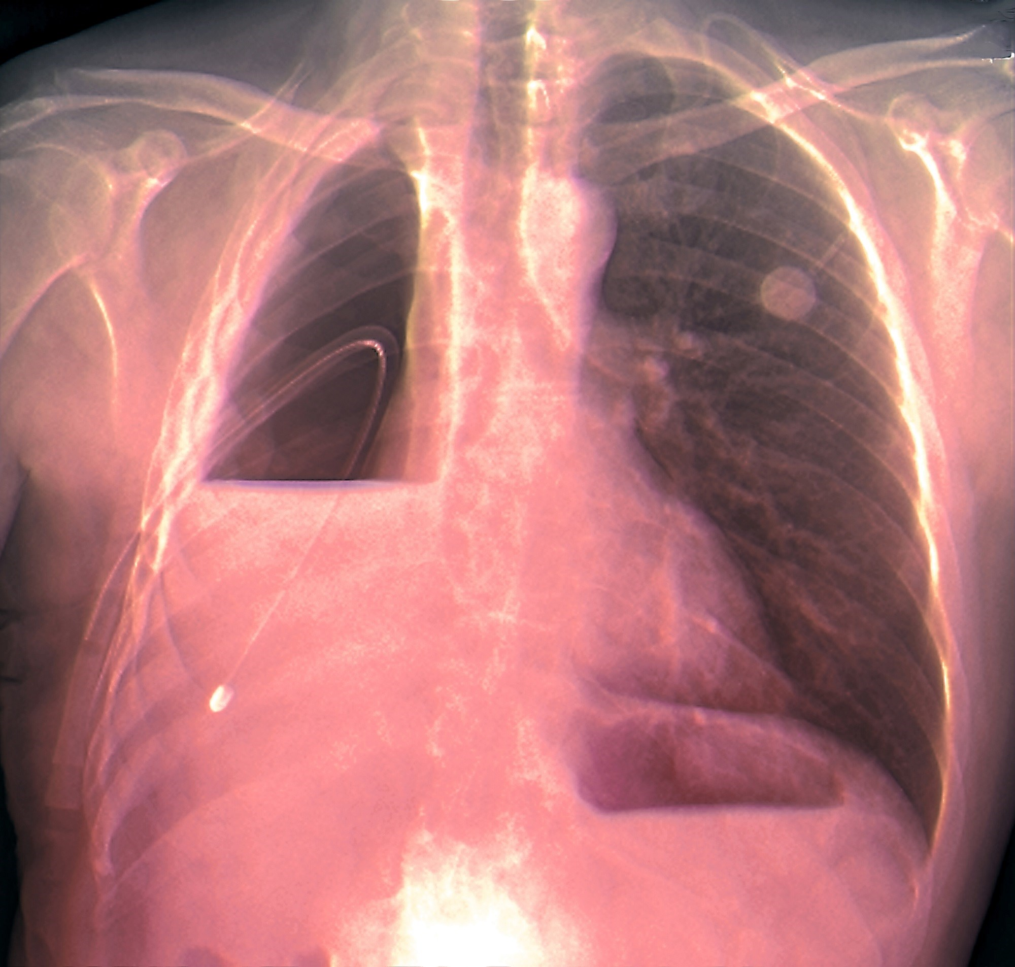 Cancers of the lung, breast, and ovaries comprise approximately 75% of malignant pleural effusions.