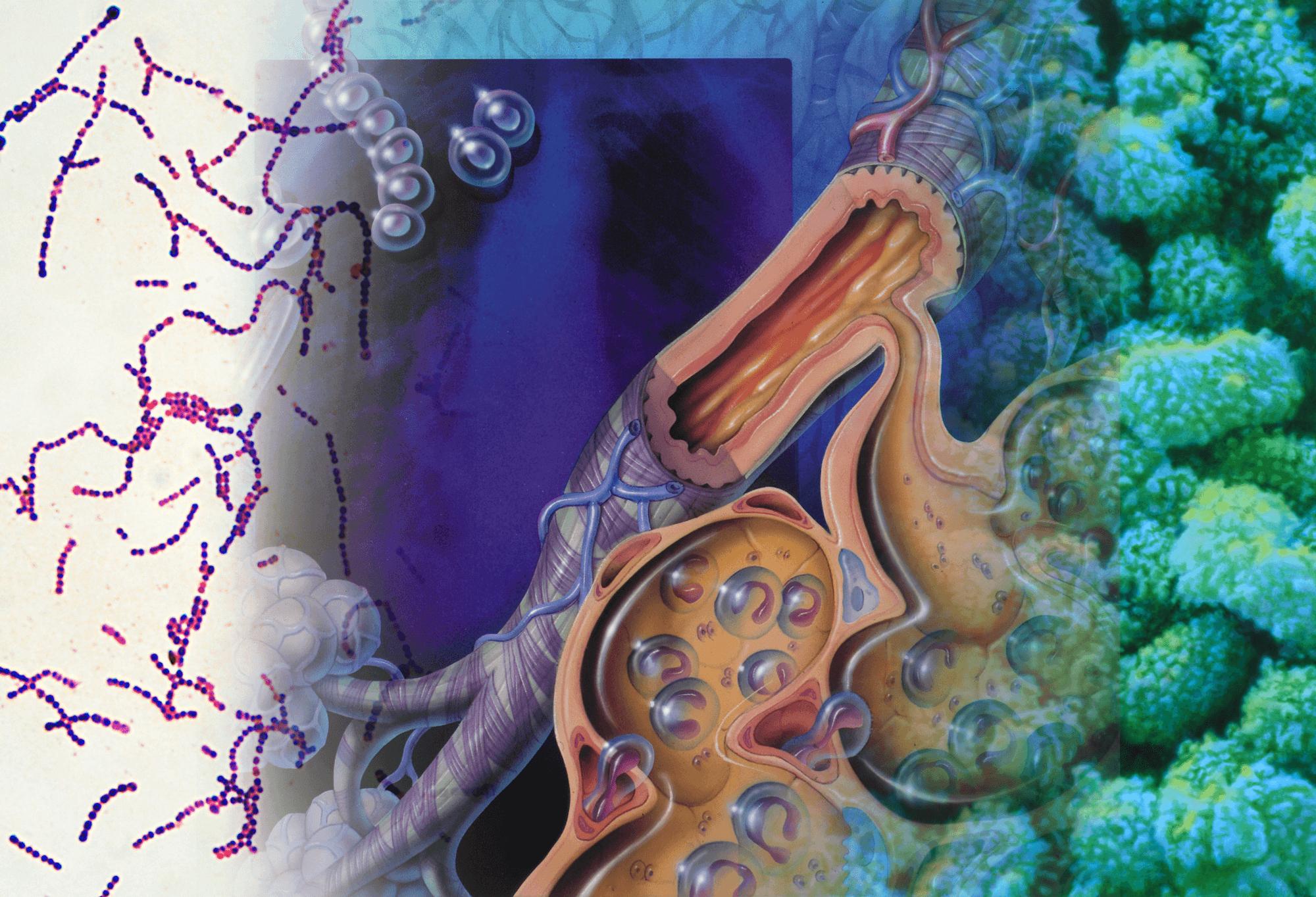Bacterial Pneumonia-Complicating Influenza: Risks, Morbidity, and Mortality