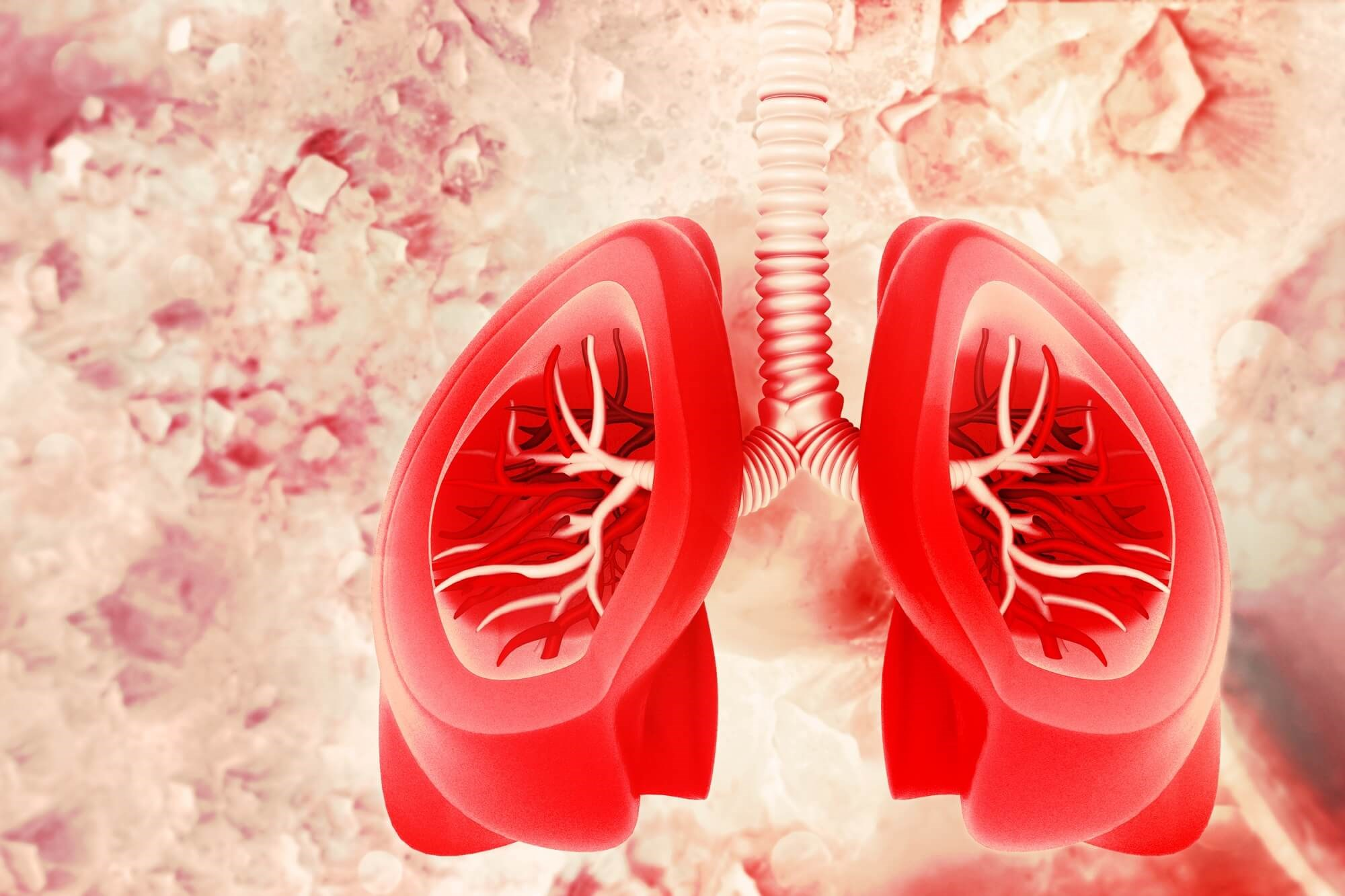 Significant improvements were reported in total and regional pulmonary microvascular blood flow.