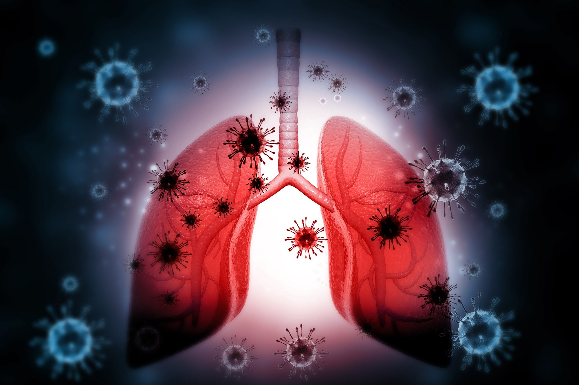Algorithm Reduces Antibiotic Use in Lower Respiratory Tract Infection