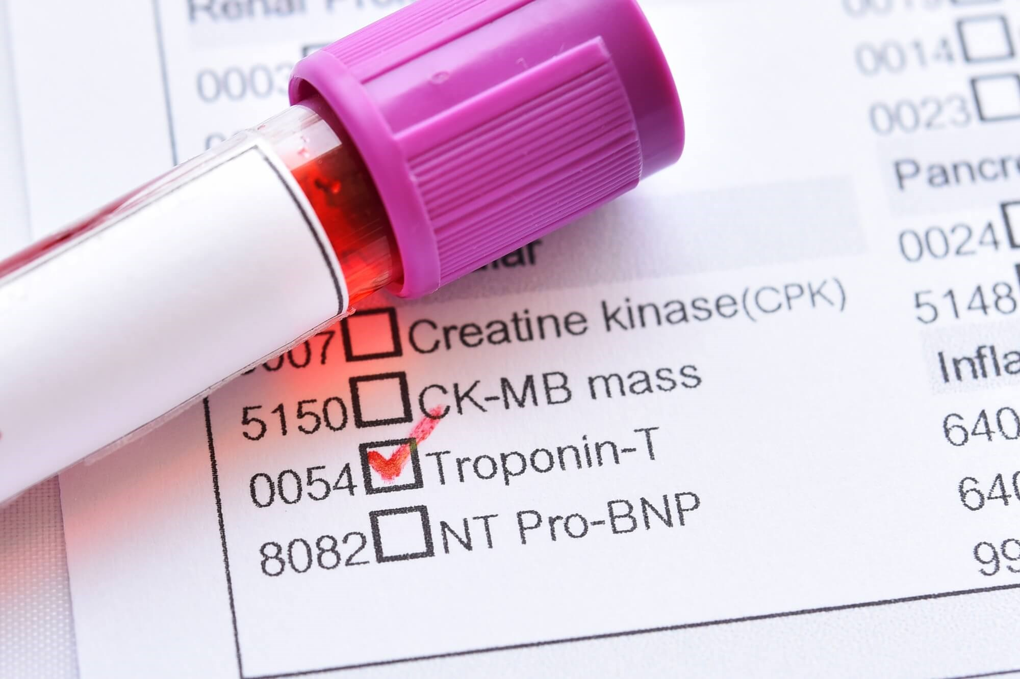 Although the methods used to detect serum cardiac troponin were not consistent, positive serum cardiac troponin was present in many patients.