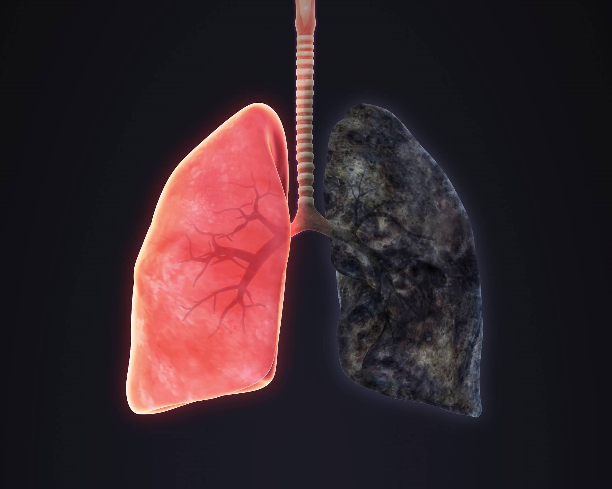 Inflammatory Markers in COPD Linked to Increased Symptom Burden in Smokers