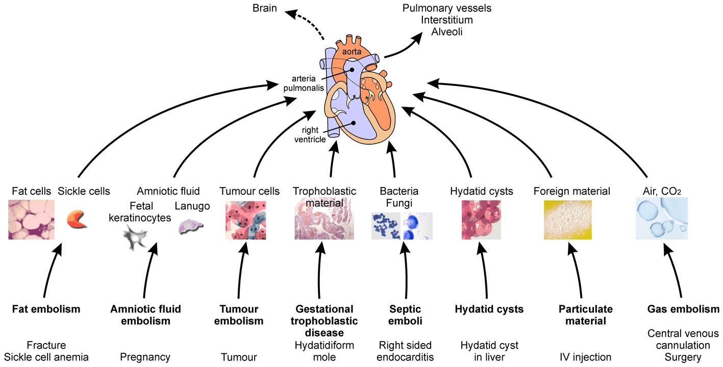 Nonthrombotic Pulmonary Embolism Air Amniotic Fluid Fat Tumor